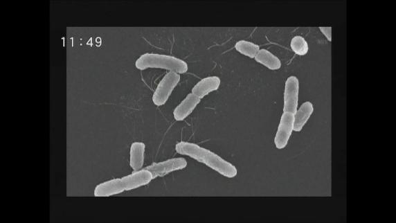 腸管出血性大腸菌が急増